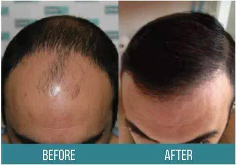 Lamtumirë rënies së flokëve, procedura e re pa dhimbje dhe me garanci të përjetshme në Spitalin Amerikan