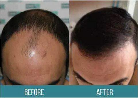 AkademiaDHI për një rezultat të shkëlqyer të flokëve tuaj.
